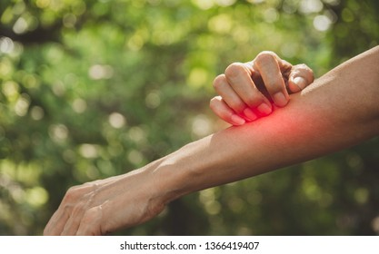 Man scratch itch with hand. Man scratching his hand healthcare concept.