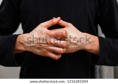 Man Scratch Oneself Dry Flaky Skin Stock Photo Edit Now 1216281004