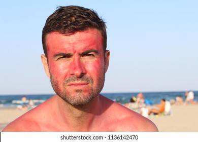 Man with serious expression after getting sunburned