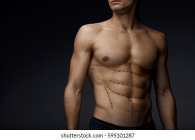Man Sexy Body With Black Lines On Skin. Closeup Of Beautiful Fit Muscular Male Torso With Pencil Surgical Marks On Abs Before Plastic Surgery, Beauty Operation On Black Background. High Resolution