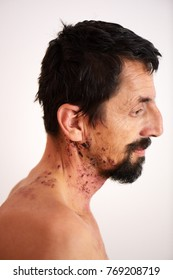 man with shingles virus