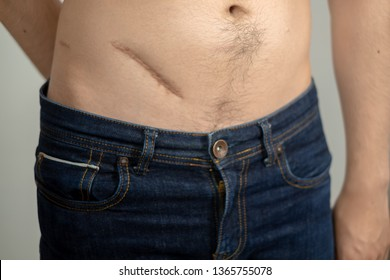 Man showing the stomach with a scar from appendicitis surgery.Healthcare concept