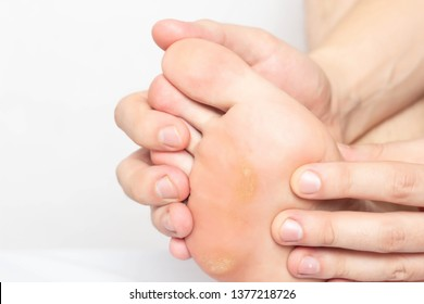 Man shows problem skin on the foot and sole of the foot dry and callous skin with mazols with a stem, close-up, copy space, disease