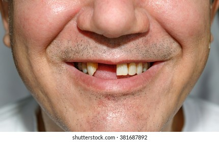 Man smile without two front teeth with bristles