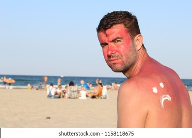 Man suffering the consequences of too much uv light exposure