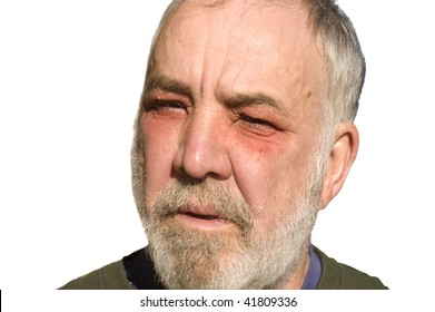 Man suffering from contact with poison oak around his eyes, with swelling of the orbit and general inflammation