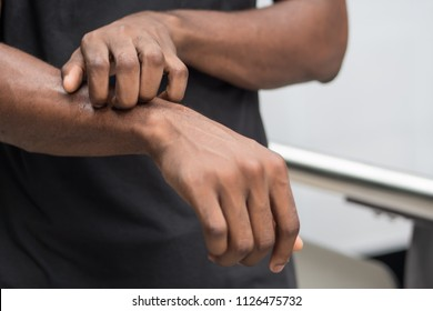 man suffering from itching skin; sick african man scratching his skin with allergy, rash, ringworm, tinea problem; health care, skin care, dermatology concept; adult african man, black man model
