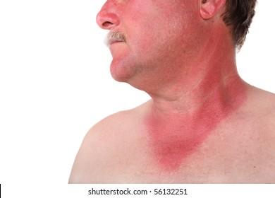 Man with a sunburn