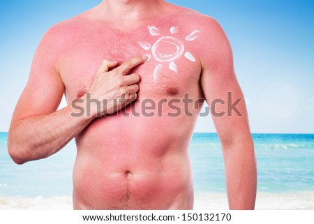 Man with a sunburn isolated on white background