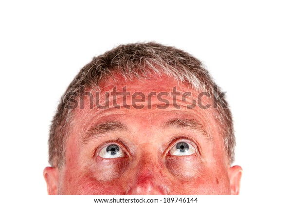 Man with a sunburn looking up