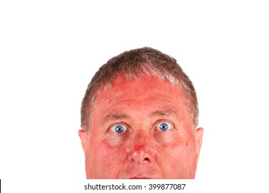 Man with a sunburned face