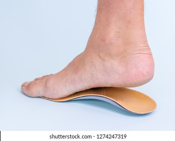 A man tries on the right leg with signs of flat feet orthopedic insole. Means for the treatment of flat feet.