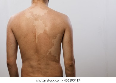 man. the view from the back vitiligo. Other pigmentation of the skin