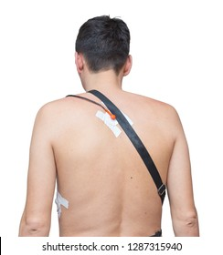 A man wears a Holter device, a device for daily ECG monitoring. Treatment of heart defects