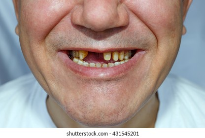 a man without two teeth and peeled the upper teeth for bridge installation with a scratched face