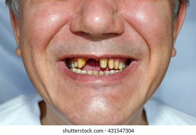 a man without two teeth and peeled the upper teeth for bridge installation