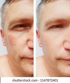 man wrinkles before and after procedures