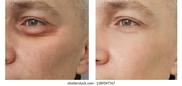 man,eye swollen before and after procedures