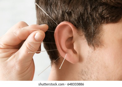 Man's ear with needles, closeup. Acupuncture concept