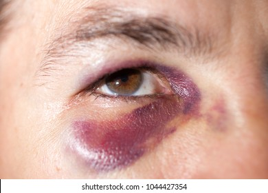 Man's face after the fight and assault. Middle-aged Caucasian male Emotional Portrait with a Real Bruise after the fight. Violence.