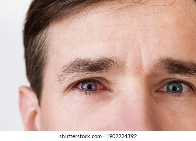 The man's face is close up on a light background, the man has red eyes because he has conjunctivitis, caught a cold and now drips special eye drops, medical concept
