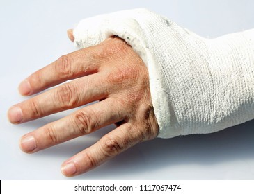 man's hand with fractured bones in the orthopedic hospital emergency room