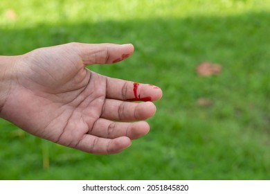 A man's hand was injured and bleeding due to accident.
