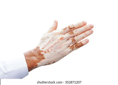 Man's hand with with vitiligo on white background.