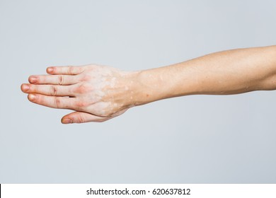 Man's hand with with vitiligo on white background
