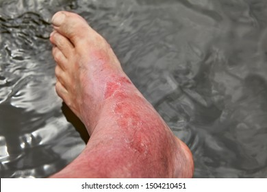 The man's leg was swollen in the ankle area as a result of a skin burn. Dermatitis, expressed by redness, peeling, and soreness after a sunburn.