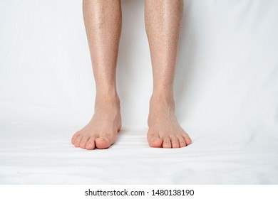 Man's Legs one week after hair removal. An image of the cumbersomeness of hair removal.