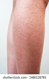 Man's legs turned red after removing hair with razor.