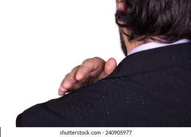 Man's shoulder in a jacket with dandruff. The concept of problem scalp and dandruff. A man in a business suit, is worried about dandruff.