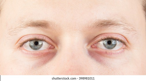 Man's tired gray eyes, clean skin