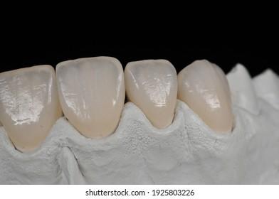 Manual and digital processes of dental prostheses, dental veneers, dental contact lenses and dental ceramics.