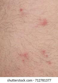 Many flea bites over caucasian man skin