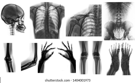 Many x-ray collages ,human x-ray
