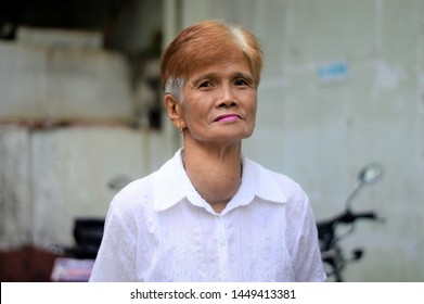 March 11, 2019 Laguna, Philippines : Elderly woman in the philippines with goitre or goiter is a swelling in the neck resulting from an enlarged thyroid gland