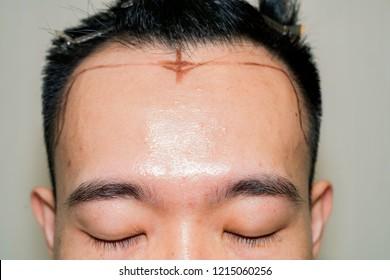 Mark Point of receding hair line for hair transplant surgery. Bald head of hair loss treatment.