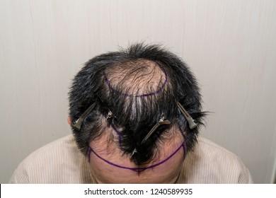 Marking hair line Point of receding hair line for hair transplant surgery. Bald head of hair loss treatment.