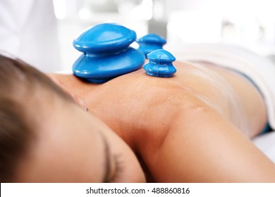 Massage therapy, massage Chinese cupping. Masseur massaging her back rubber Chinese bubble.