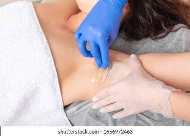 Master of sugaring making hair removal procedure for woman. Epilation with liquate sugar paste. Treatment In Cosmetic Beauty Clinic. Beautician waxing female armpit