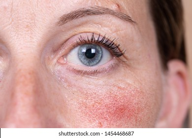 A mature Caucasian woman is seen up close, suffering with severe rosacea in the cheek. Superficial blood vessels cause red and blotchy skin in the face.