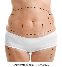 Mature female body with marks for plastic operation, white background. Liposuction concept