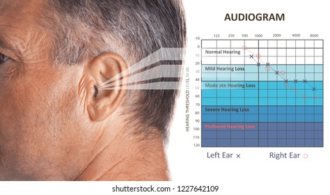 Mature man with symptom of hearing loss and audiogram on white background. Medical test