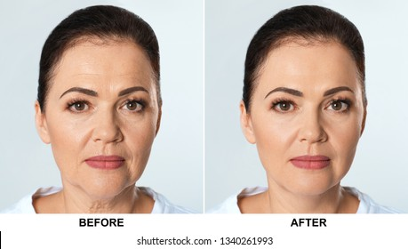 Mature woman before and after biorevitalization procedure on light background. Cosmetic surgery