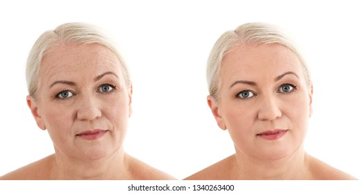 Mature woman before and after biorevitalization procedure on white background. Cosmetic surgery