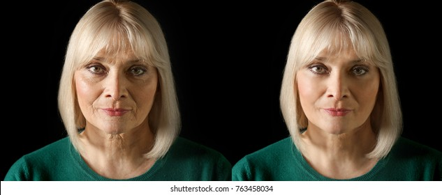 Mature woman before and after biorevitalization procedure on black background