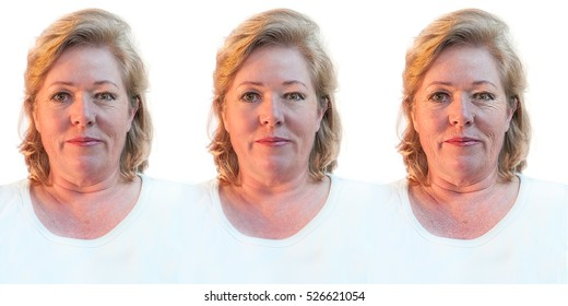 Mature woman contemplating rejuvenating skin and removing wrinkles or letting nature take its course