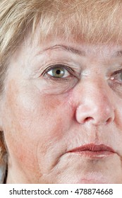 Mature woman with gradually fading scar one month after Mohs surgery for Basal Cell Carcinoma - closeup